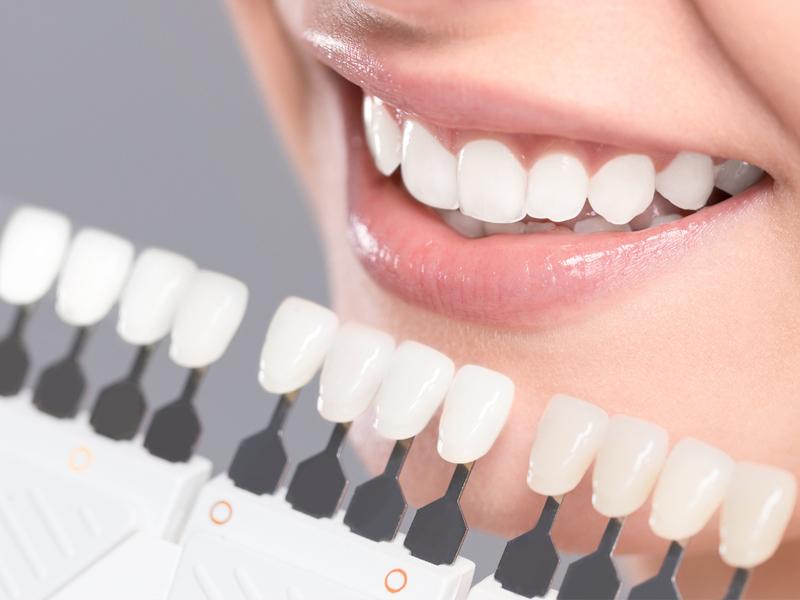 Che cosa sono le faccette dentali?