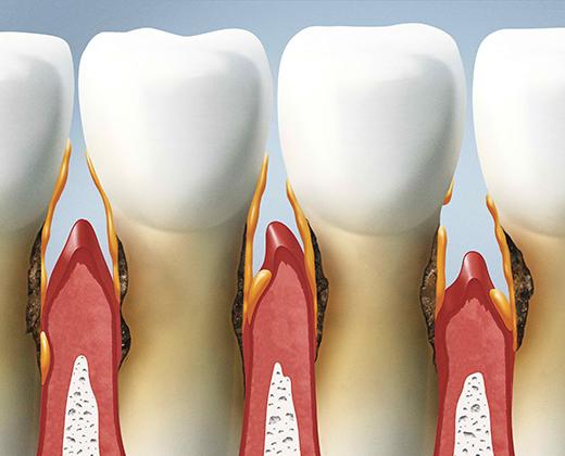 Parodontologia Roma San Giovanni